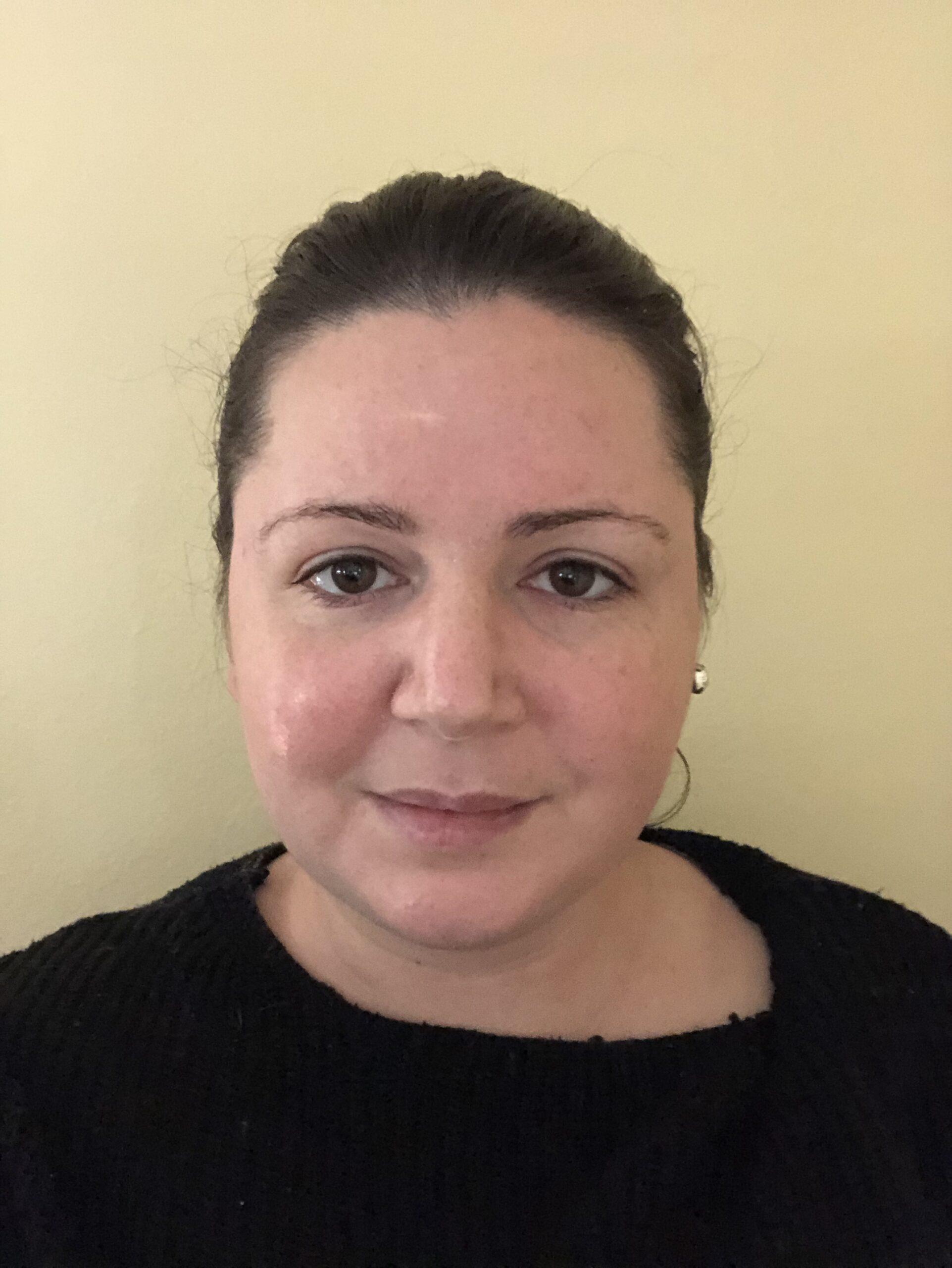 Amelia Fischhoff, LLMSW<